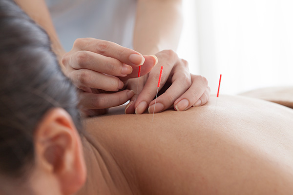 acupuncture ajax